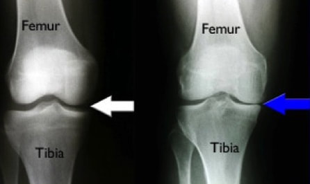 Standing knee x-rays show joint space narrowing in the setting of osteoarthritis.