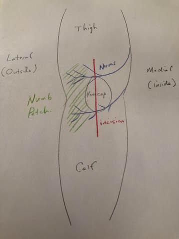 Sketch showing numb patch on the lateral aspect of the knee after knee replacement surgery